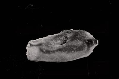 <i><i>Conochitina acuminata</i> | Conochitina cf. acuminata</i><br />Ohesaare borehole, 342.20 m, Adavere Stage ( 754-792)