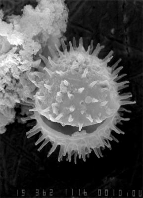 Micrhystridium nanodigitatum Uutela et Tynni, 1991, GIT 344-180