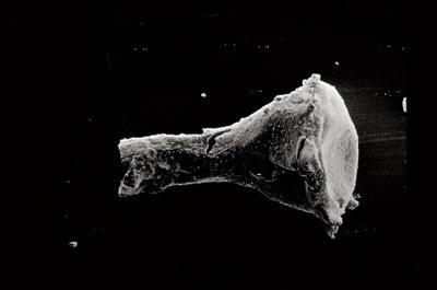 <i><i>Conochitina pachycephala</i> | Conochitina cf. pachycephala</i><br />Varbla 502 borehole, 104.10 m, Jaani Stage ( 754-529)