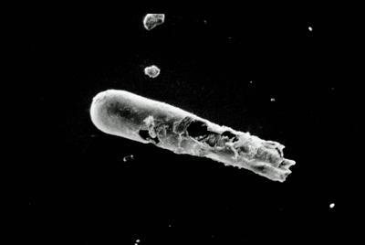 <i><i>Conochitina leptosoma</i></i><br />Varbla 502 borehole, 97.20 m, Jaani Stage ( 754-94)