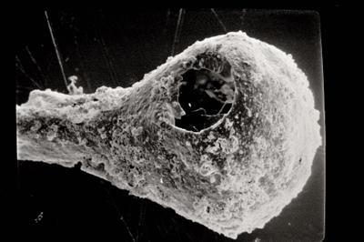 <i><i>Sphaerochitina</i> | Sphaerochitina sp.</i><br />Ruhnu 500 borehole, 341.55 m, Jaagarahu Stage ( 754-481)