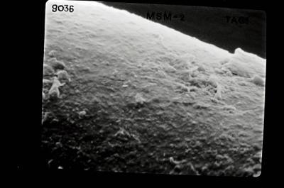 <i><i>Conochitina tuba</i> | Conochitina cf. tuba/aff. argillophila</i><br />Ohesaare borehole, 260.30 m, Jaagarahu Stage ( 754-639)
