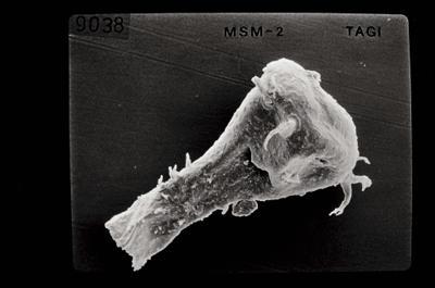 <i><i>Ancyrochitina</i>   Ancyrochitina sp. (d)</i><br />Ruhnu 500 borehole, 344.50 m, Jaagarahu Stage ( 754-662)
