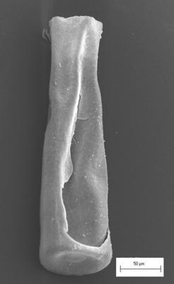 <i><i>Conochitina alargada</i></i><br />Staicele 4 borehole, 373.00 m, Raikküla Stage ( 754-1374)