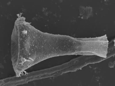 <i><i>Ancyrochitina bifurcaspina</i></i><br />Kolka 54 borehole, 632.70 m, Raikküla Stage ( 754-403)