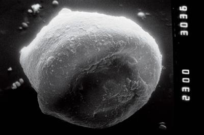 <i><i>Eisenackitina</i> | Eisenackitina sp.</i><br />Nagli 106 borehole, 609.00 m, Jaani Stage ( 754-871)