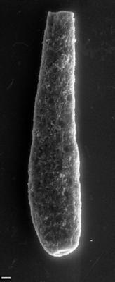 <i><i>Chitinozoa</i> | Kitiiniku laadne mikrofosiil</i><br />Siimika F-328 borehole,  m, Tremadocian ( 1540-6)