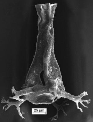 <i><i>Ancyrochitina rumbaensis</i></i><br />Ikla borehole, 307.80 m, Adavere Stage ( 350-6)