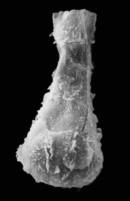 <i><i>Ramochitina spinipes</i></i><br />Pavilosta 51 borehole, 796.00 m, Gorstian ( 576-7)