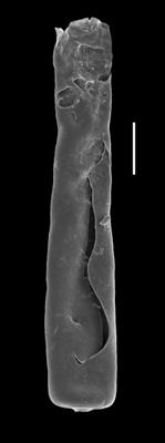 <i><i>Conochitina mamilla</i></i><br />Paatsalu 527 borehole, 66.25 m, Wenlock ( 493-15)