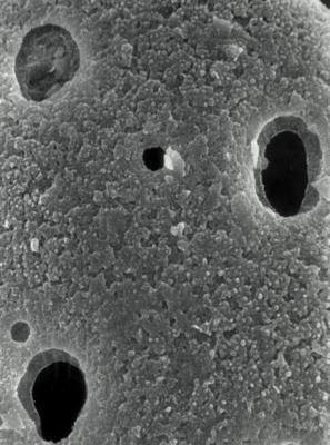 <i><i>Lagenochitina baltica</i></i><br />Rapla borehole, 95.50 m, Nabala Stage ( 190-6)