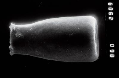 <i><i>Conochitina</i>   Conochitina cf. emmastensis</i><br />Nagli 106 borehole, 627.00 m, Adavere Stage ( 754-864)
