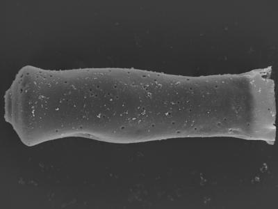 <i><i>Conochitina pachycephala</i></i><br />Ohesaare borehole, 162.00 m, Jaagarahu Stage ( 754-333)