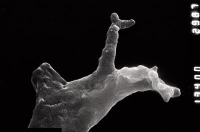 <i><i>Plectochitina</i> | Plectochitina  cf. pachyderma</i><br />Ohesaare borehole, 294.16 m, Jaani Stage ( 754-888)