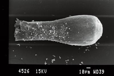 <i><i>Conochitina postarmillata</i> | Conochitina postarmillata?</i><br />Gussev 1 borehole, Kaliningrad oblast, 1456.50 m, Paadla Stage ( 754-26)