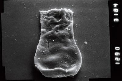 <i><i>Linochitina</i>   Linochitina sp.2</i><br />Nagli 106 borehole, 625.00 m, Adavere Stage ( 754-951)