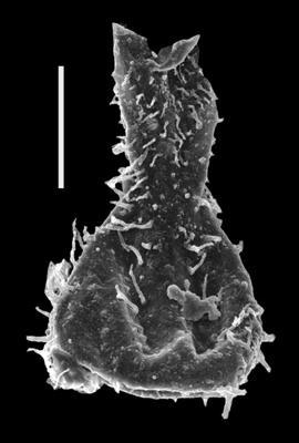 <i><i>Ramochitina</i> | Ramochitina sp. 1</i><br />Dubovskoye borehole, 1177.00 m, Přidoli ( 607-17)