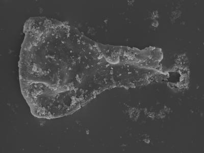 <i><i>Sphaerochitina</i> | Sphaerochitina sp. / Ramochitina sp.</i><br />Kolka 54 borehole, 416.00 m, Jaagarahu Stage ( 754-473)
