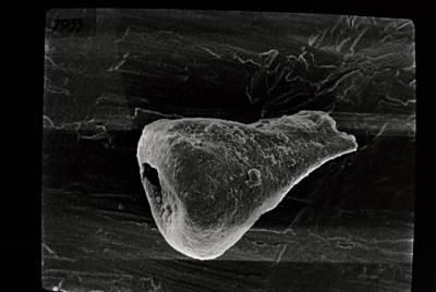 <i><i>Ancyrochitina</i>   Ancyrochitina sp.</i><br />Laeva 10 borehole, 122.50 m, Juuru Stage ( 754-703)