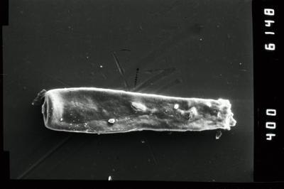 <i><i>Conochitina claviformis</i></i><br />Ventspils D-3 borehole, 655.00 m, Ludlow ( 754-955)