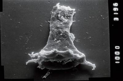 <i><i>Ancyrochitina</i> | Ancyrochitina cf. convexa</i><br />Ventspils D-3 borehole, 856.00 m, Raikküla Stage ( 754-937)