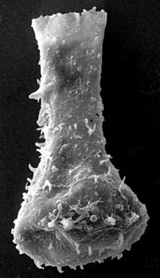 <i><i>Sphaerochitina indecora</i></i><br />Ohesaare borehole, 165.90 m, Jaagarahu Stage ( 272-203)