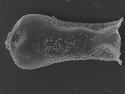 <i><i>Linochitina</i>   Linochitina sp. nov</i><br />Kolka 54 borehole, 422.80 m, Jaagarahu Stage ( 754-469)