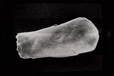 <i><i>Conochitina cribrosa</i></i><br />Ohesaare borehole, 188.20 m, Jaagarahu Stage ( 754-782)