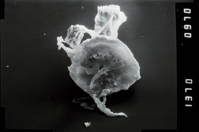 <i><i>Plectochitina</i> | Plectochitina cf. nodifera</i><br />Viki borehole, 238.90 m, Juuru Stage ( 754-1049)
