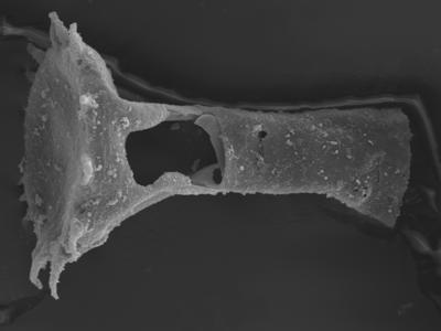 <i><i>Plectochitina pachyderma</i> | Plectochitina cf. pachyderma</i><br />Ohesaare borehole, 162.00 m, Jaagarahu Stage ( 754-334)
