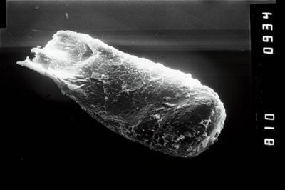 <i><i>Conochitina</i>   Conochitina aff.tuba</i><br />Ruhnu 500 borehole, 511.45 m, Raikküla Stage ( 754-1024)