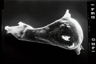 <i><i>Plectochitina</i>   Plectochitina cf. spongiosa</i><br />Sõru 400 borehole, 71.00 m, Juuru Stage ( 754-1028)