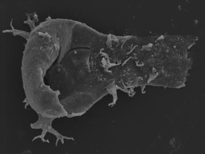 <i><i>Ancyrochitina plurispinosa</i></i><br />Kolka 54 borehole, 473.80 m, Jaagarahu Stage ( 754-1253)