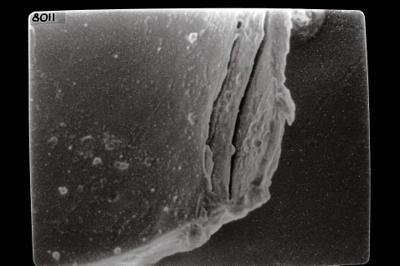 <i><i>Conochitina postrobusta</i></i><br />Ikla borehole, 504.20 m, Juuru Stage ( 754-1780)