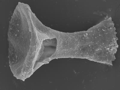 <i><i>Clathrochitina clathrata</i> | Clathrochitina aff. clathrata?</i><br />Ohesaare borehole, 164.25 m, Jaagarahu Stage ( 754-323)