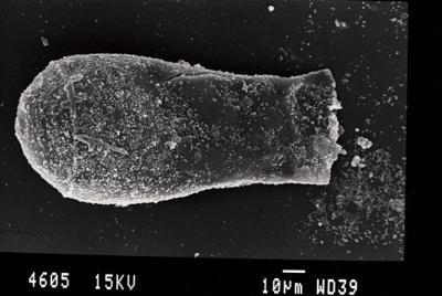 <i><i>Cingulochitina</i> | Cingulochitina sp. sp.</i><br />Gussev 1 borehole, Kaliningrad oblast, 1441.60 m, Paadla Stage ( 754-35)