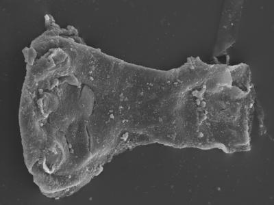 <i><i>Ancyrochitina digitata</i> | Ancyrochitina cf. digitata</i><br />Kolka 54 borehole, 566.40 m, Adavere Stage ( 754-428)