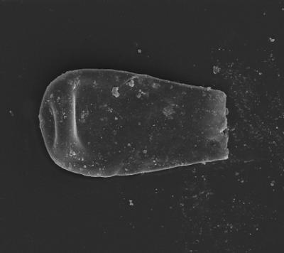 <i><i>Eisenackitina dolioliformis</i></i><br />Ventspils D-3 borehole, 815.00 m, Telychian ( 754-1349)