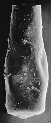 <i><i>Chitinozoa</i> | Conochitina cf. tuba Eisenack, 1932</i><br />Ohesaare borehole, 305.40 m, Jaani Stage ( 220-28)
