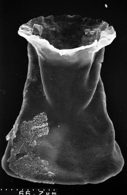 <i><i>Chitinozoa</i></i><br />,  m,  ( 1532-93)