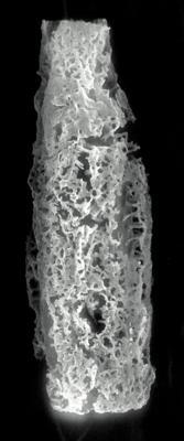 <i><i>Acanthochitina barbata</i></i><br />Rapla borehole, 78.40 m, Vormsi Stage ( 190-3)