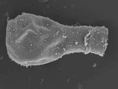 <i><i>Sphaerochitina lycoperdoides</i></i><br />Ohesaare borehole, 146.95 m, Rootsiküla Stage ( 754-363)