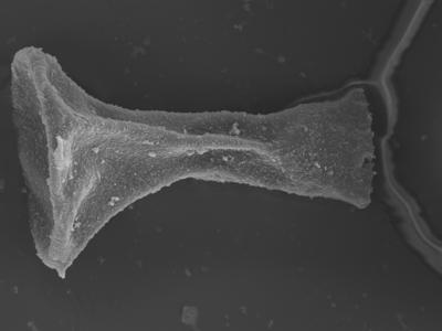 <i><i>Plectochitina</i>   Plectochitina sp.</i><br />Ohesaare borehole, 152.90 m, Rootsiküla Stage ( 754-347)