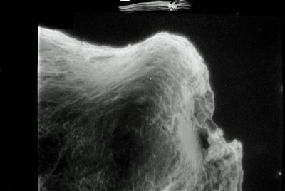 <i><i>Conochitina claviformis</i></i><br />Varbla 502 borehole, 97.20 m, Jaani Stage ( 754-96)