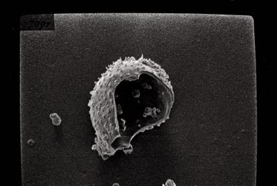 <i><i>Angochitina longicollis</i> | Angochitina aff. longicollis</i><br />Ruhnu 500 borehole, 290.00 m, Jaagarahu Stage ( 754-149)
