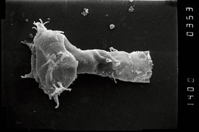 <i><i>Ancyrochitina vikiensis</i></i><br />Viki borehole, 148.45 m, Adavere Stage ( 754-1096)