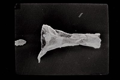 <i><i>Ancyrochitina primitiva</i>   Ancyrochitina cf. primitiva</i><br />Kaugatuma 509 borehole, 46.40 m, Kuressaare Stage ( 754-765)