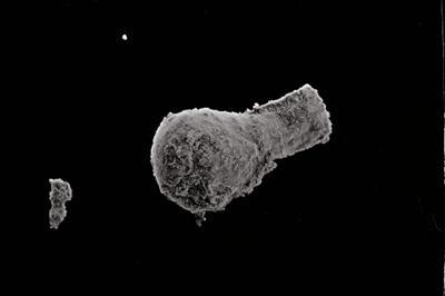 <i><i>Sphaerochitina dubia</i> | Sphaerochitina aff. dubia</i><br />Kolka 54 borehole, 232.70 m, Kaugatuma Stage ( 754-743)