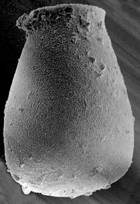 <i><i>Eisenackitina spongiosa</i></i><br />Ohesaare borehole, 260.30 m, Jaagarahu Stage ( 272-103)