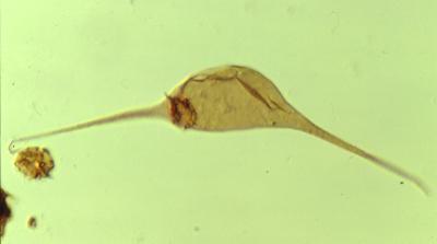 Leiofusa stoumonensis Vanguestaine, 1973, TUG 1520-26